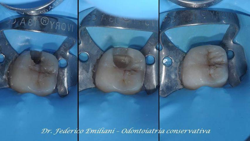 La carie è un processo patogeno che porta alla distruzione dello smalto dei denti. La terapia consiste nell'eliminare i batteri, causa della carie, asportare la porzione di smalto e dentina distrutte, e riparare il danno con materiali in grado di conferire nuova estetica e funzione.