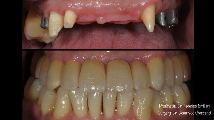 Riabilitazione protesica dell' arcata superiore su denti naturali e su impianti.