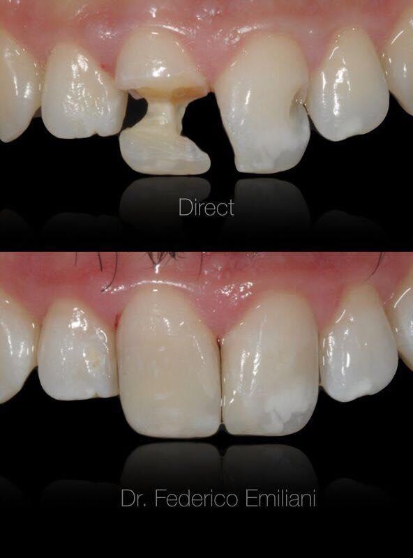 I professionisti del sorriso che sogni, senza togliere i denti, anche se sono rovinati.  (Pre-ricostruzioni prima di migliorare il sorriso e l'integrità dei denti attraverso ortodonzia e faccette in ceramica.....chi ben comincia è a metà dell'opera 😉).