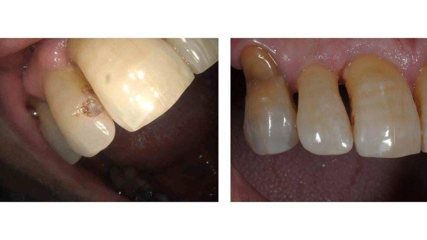 Ricostruzione diretta in composito di incisivo laterale (12) cariato.