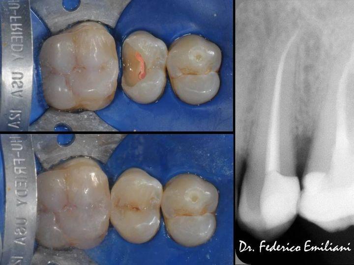 Terapia canalare e ricostruzione diretta in composito di un premolare superiore.