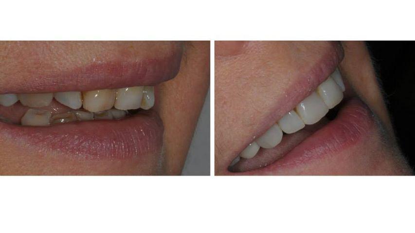 Faccette in ceramica (additional veneers), senza preparazione dentale.