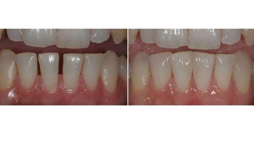 Faccette in ceramica inferiori (elementi: 42-41-31-33), per chiusura diastemi. Additional veneers, senza preparazione dei denti.