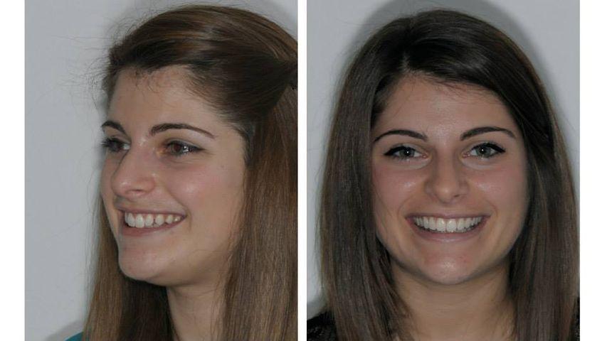 A sinistra: diastemi e leggera sproporzione dentale: incisivi laterali piccoli e sorriso un po' sbilanciato.  A destra: correzione con applicazione di faccette in ceramica senza preparazione della superficie dentale (additional veneers) degli elementi 12-13-14-22-23-24.