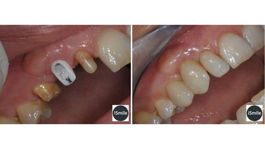 Caso protesico su denti naturali (12 e 14) e impianto su 13. Corone in disilicato di litio.