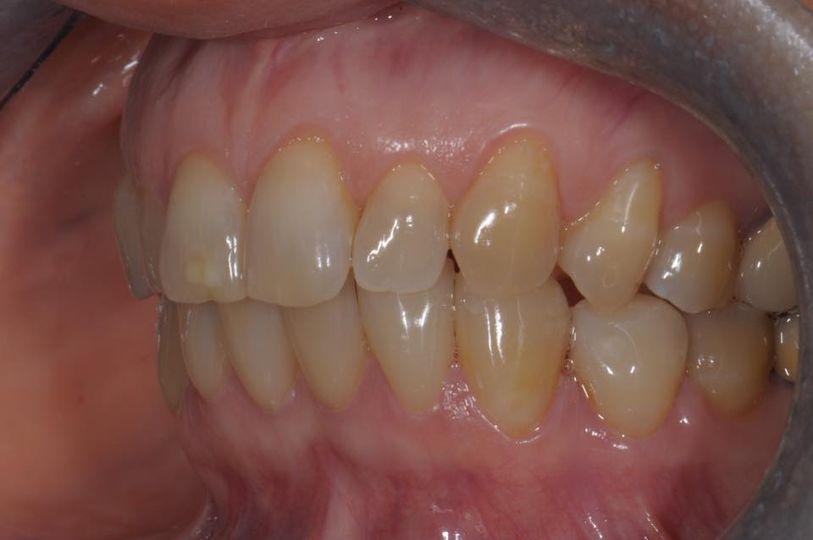 Immagine della salute gengivale e della perfetta integrazione cromatica delle otto faccette inferiori.