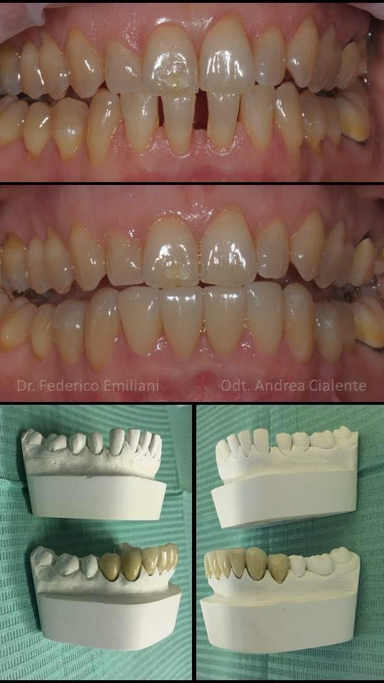 Chiusura diastemi inferiori. Spesso gli spazi tra i denti causano disarmonia e disagio nel sorriso. Grazie all'applicazione di otto faccette in disilicato di litio è stato possibile risolvere il caso. La cementazione è avvenuta sulla porzione anteriore dei denti, senza compromettere la struttura sana posteriore.