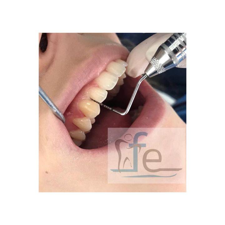 • Gengive che sanguinano? • Il Dr Federico Emiliani effettua delle visite specialistiche per definire il tuo stato di infiammazione parodontale.   Impostare un piano di trattamento adeguato migliorerà in poco tempo la salute delle tue gengive.  CHIAMA ORA! 06786327