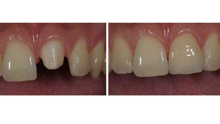 """Riabilitazione di un singolo elemento. Grazie ai materiali """"metal-free"""" è possibile conferire aspetto e funzione molto simili al dente naturale."""