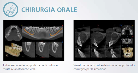 Chirurgia CBCT TAC