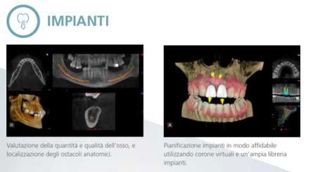 Implantologia CBCT 3D TAC