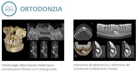 Ortodonzia CBCT