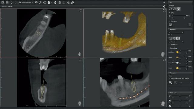 Implant-3D-Giadel